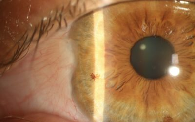 The Common Pterygium